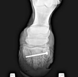 Repair of Coffin Bone Fracture With Screw